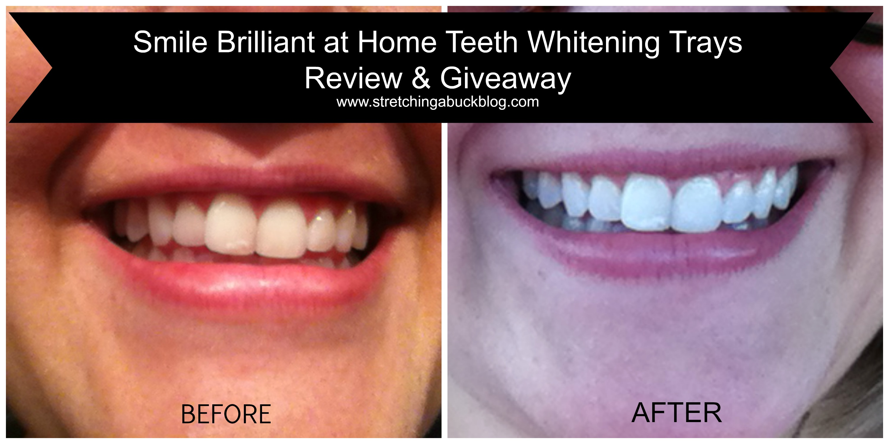 Smile Brilliant At Home Teeth Whitening Trays Review Prize Pack Giveaway Spon Stretching A Buck Stretching A Buck