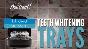 smile brilliant teeth whitening trays review